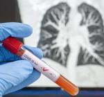 В Украине 638 новых случаев COVID-19 за сутки