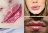 губы-осьминоги