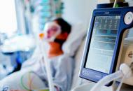 аппараты искусственной вентиляции легких (ИВЛ) (иллюстрация)