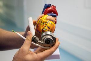 механическое-сердце