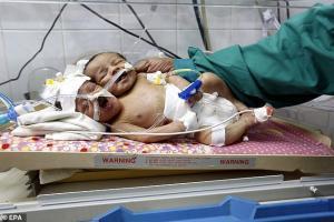 Йемен, уникальные роды