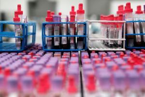 В Украине за сутки выявили706 новых случаев COVID-19